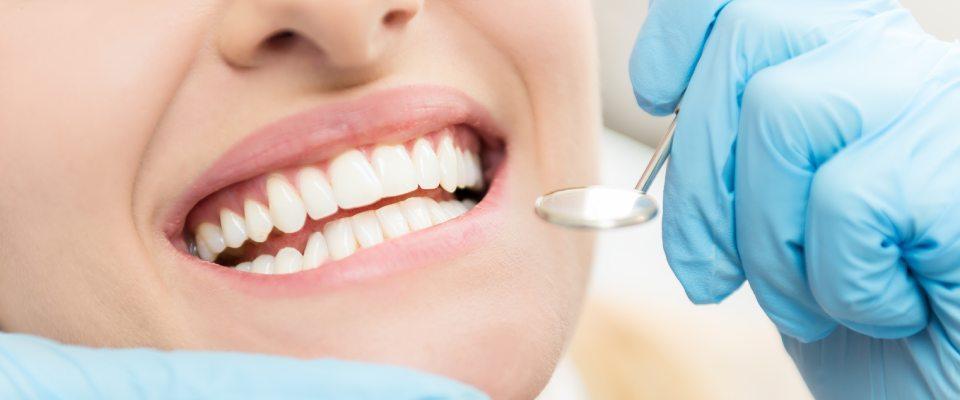 zęby powybielaniu
