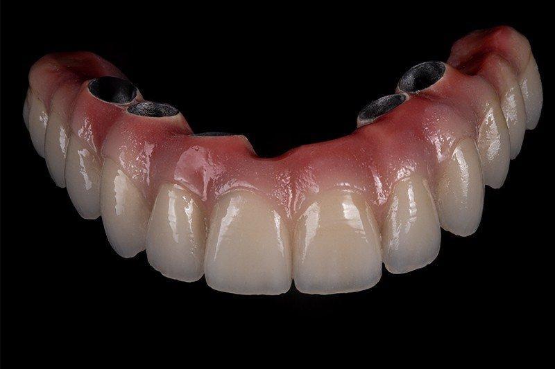 przeprowadzanie zabiegu dentystycznego